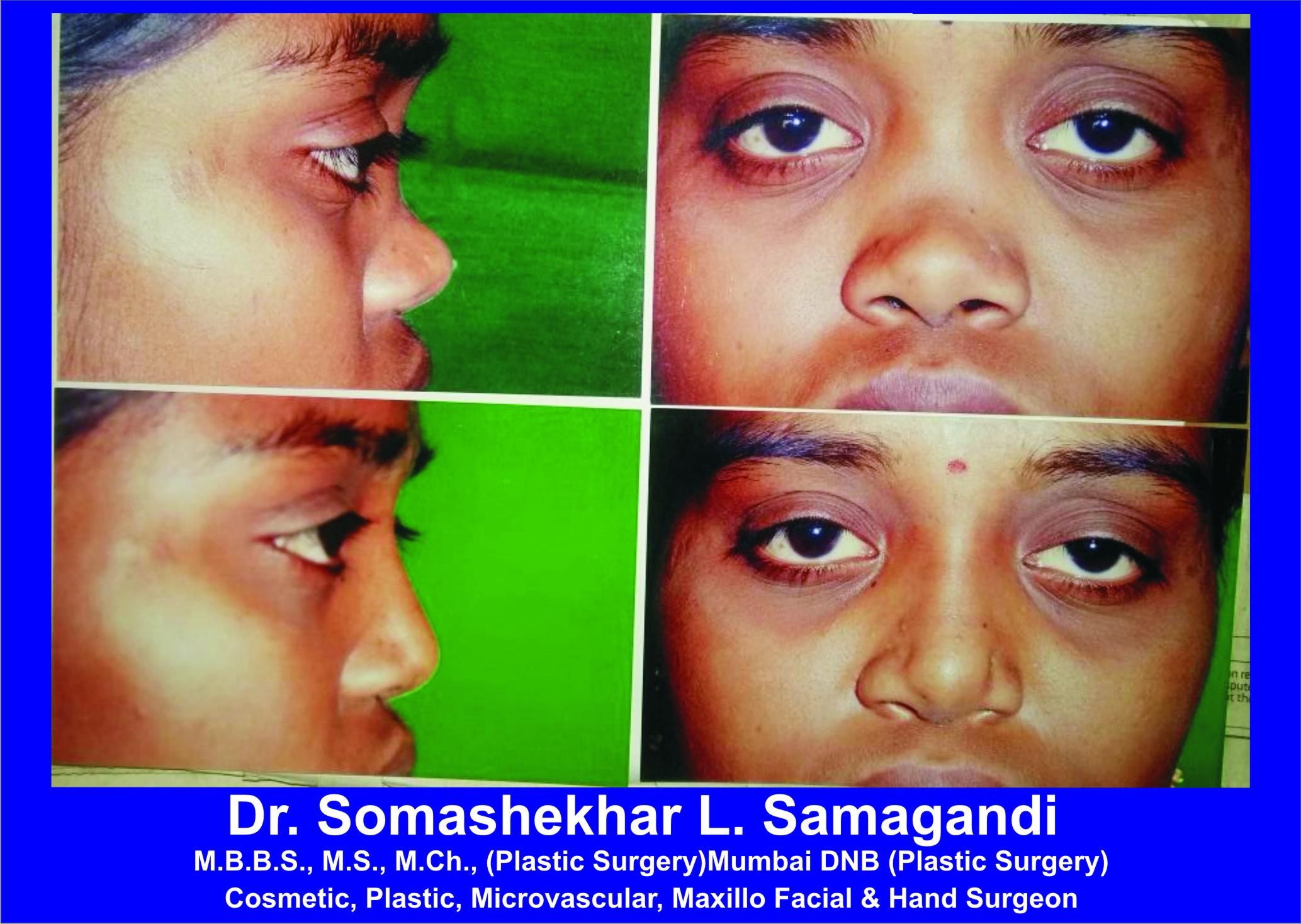 Dr. Somashekhar L. Samagandi